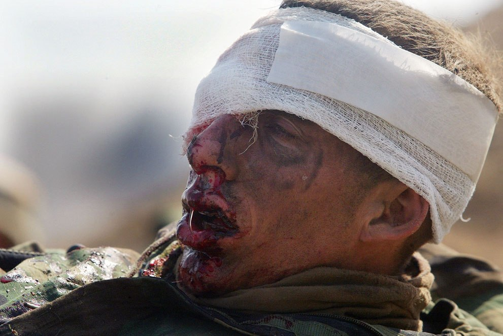 Лейтенант морской пехоты США ждет эвакуации после ранения в южном иракском городе Эн-Насирия, 23 марта 2003 года.