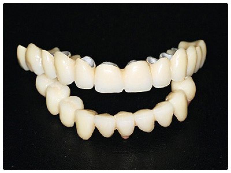 Особенности металлокерамики для зубов